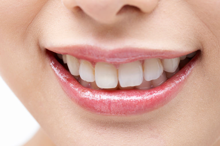 魅力的な輝く白い歯を手に入れる